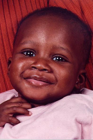 Senegal Krankenhaus Bilbassi - Herzkinder - Sokhna